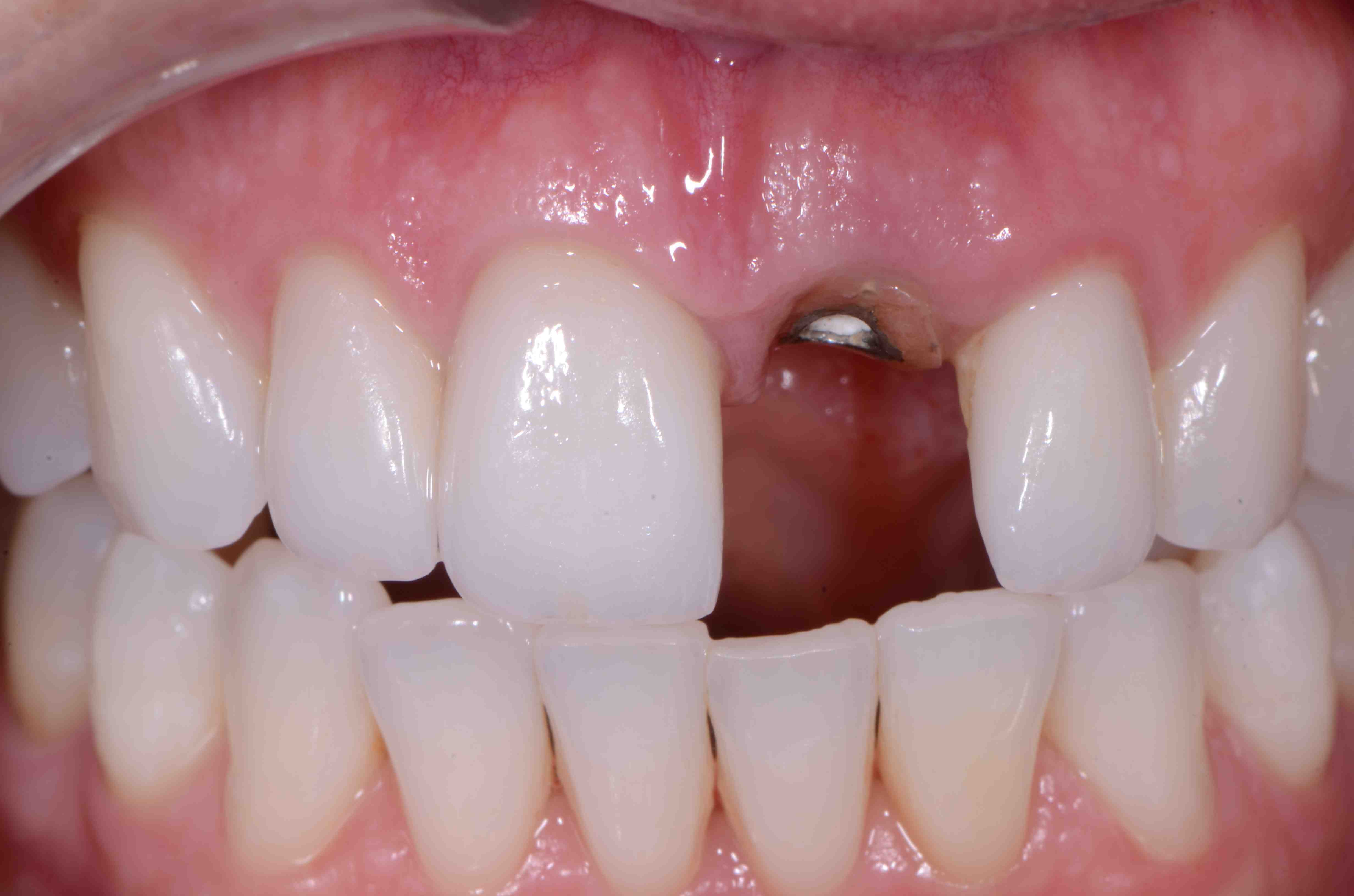 Anterior Implant Provisionals: Yes or No?