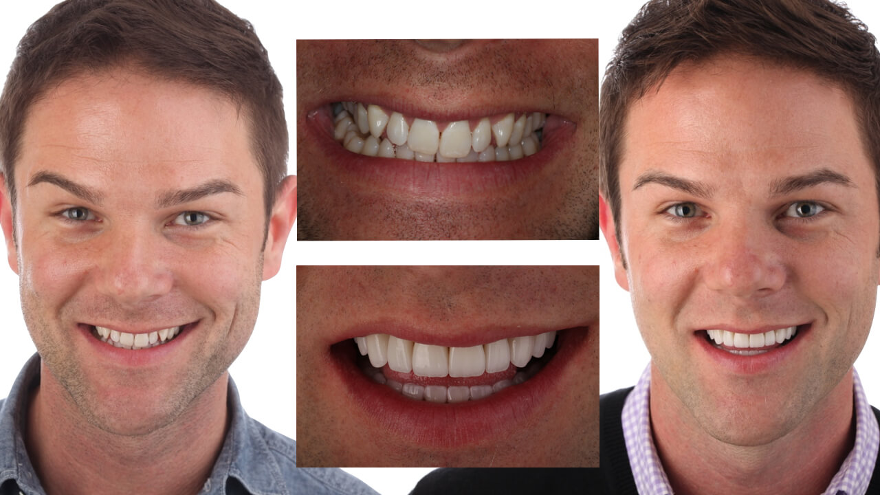 Violations of Smile Design #1: A Crooked Smile