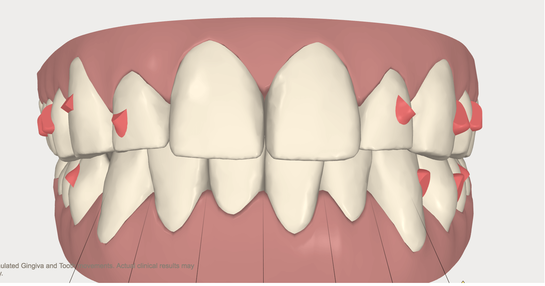 Updated Invisalign Protocol